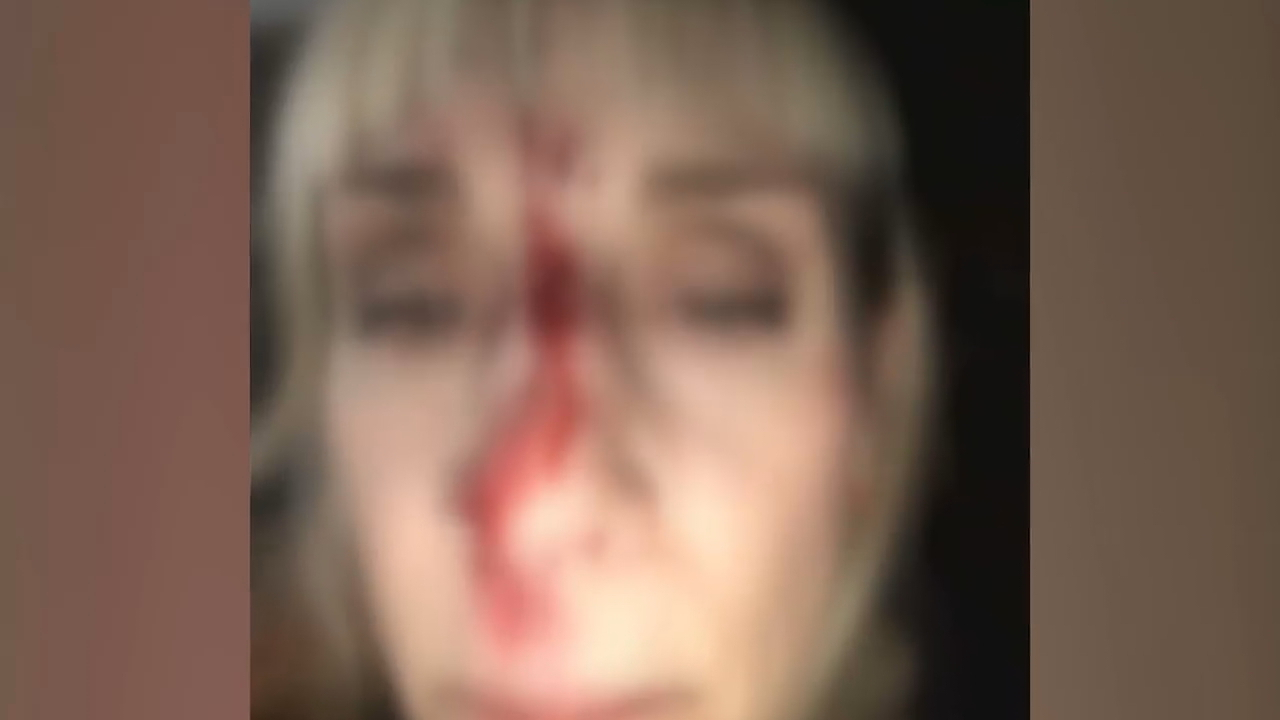 A Seattle woman is speaking out after she was attacked at her doorstep by strangers she tried to get out of her yard, near Green Lake. (Photo: KOMO News)