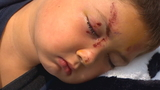 Olympia 6-year-old ends up in hospital after standing up to bullies