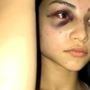 Woman seen beaten on viral video explains her actions