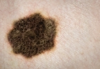 Does this look strange to you? Spotting suspicious moles with crowd-sourcing