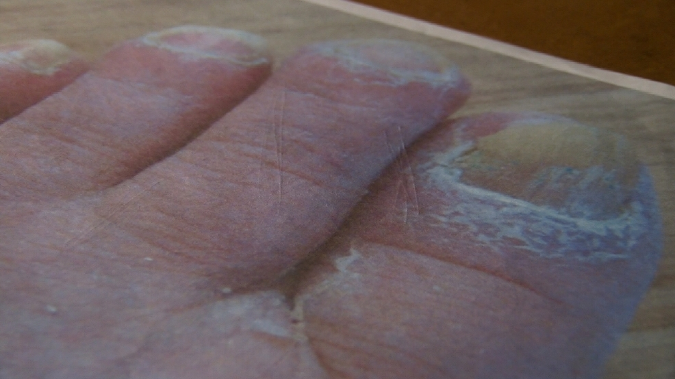 Pasco woman claims Regal Nails Salon caused fungal nail infection | KEPR