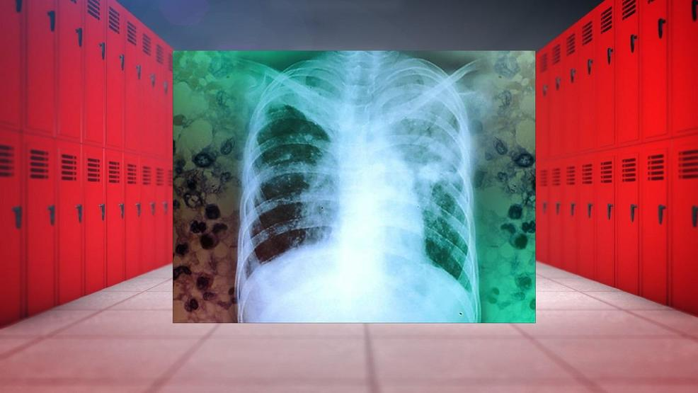 2 tuberculosis cases reported at northwest Georgia elementary